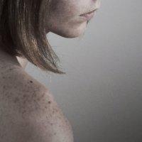 freckles :: Ollie Dreamer