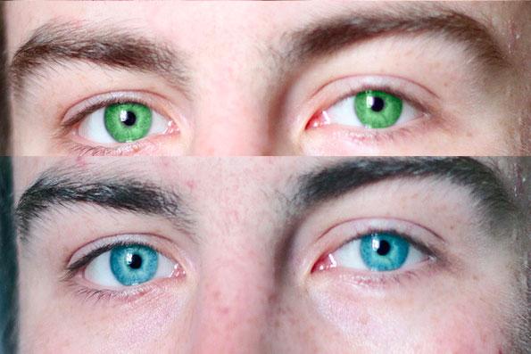 Операция по изменению цвета глаз лазером цена