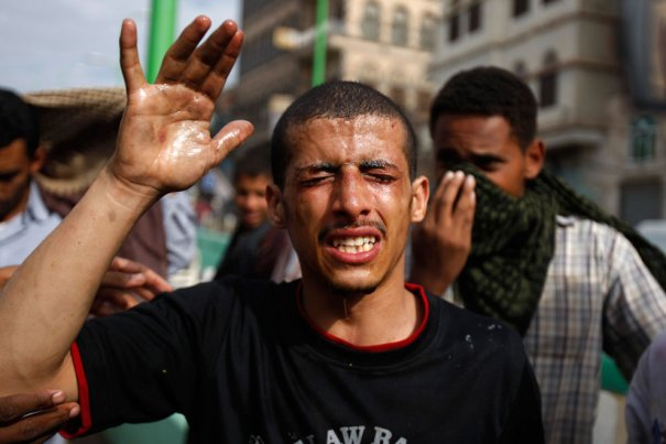 AP Photo/Hani Mohammed