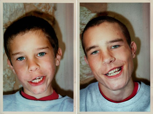 Нико 1990 и 2010 Франция