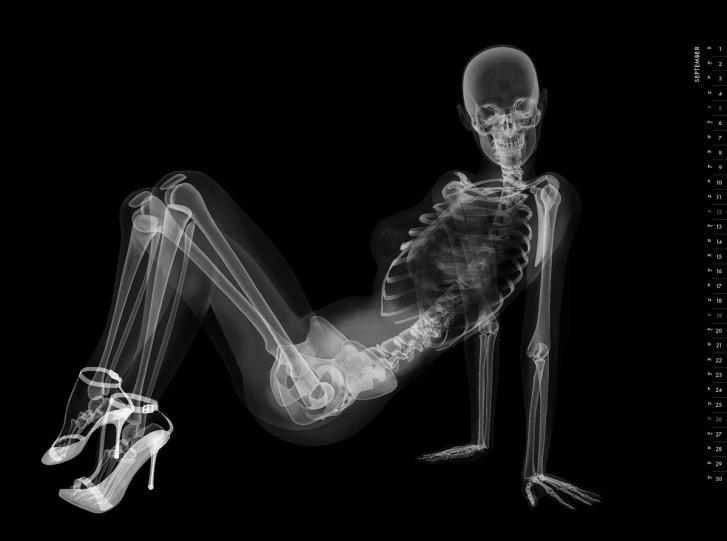 rentgenovskiy-pinap-meditsinskiy-kalendar_10