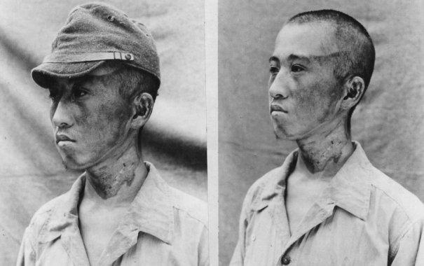 Новости в фотографиях - страшные кадры в память о Хиросиме - №16
