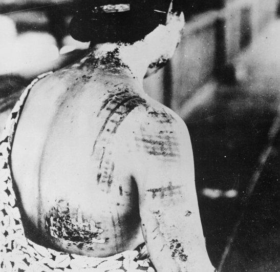 Новости в фотографиях - страшные кадры в память о Хиросиме - №24
