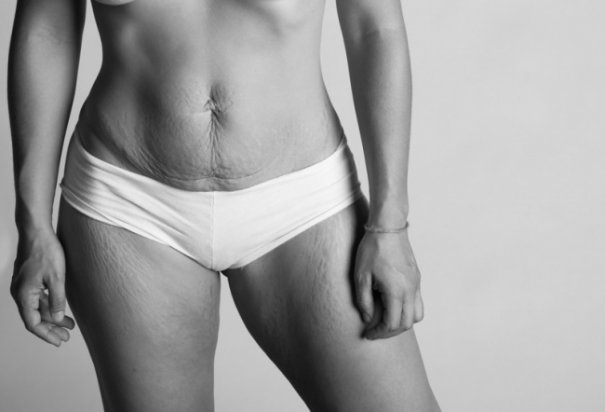"""Фото проект """"Красивое тело"""" - №4"""