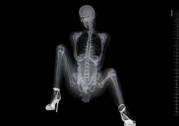 Рентген и девушки - смотрите необычные фото - №1