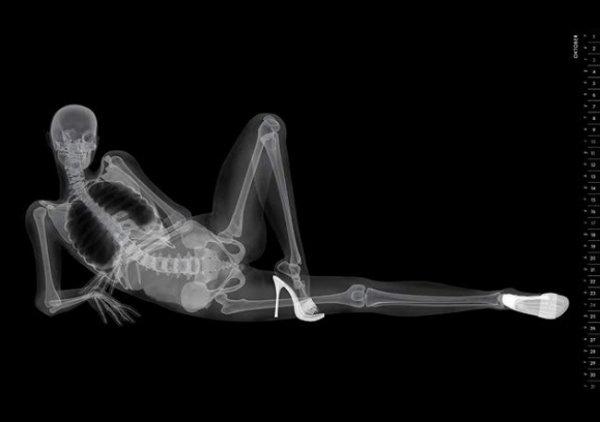 Рентген и девушки - смотрите необычные фото - №2